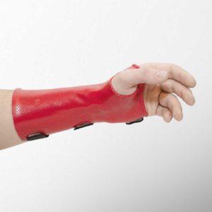 shina-za-ruka-dinamichen-splint-fiksirasht-grivnena-stava-orfit-orthoteh-ortopedichen-magazin-70802